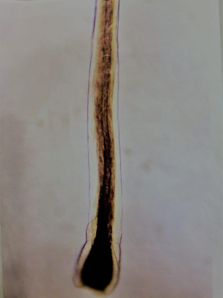 dun haar, haarwortel, anagene haarwortel